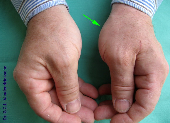 wijs vinger gezwollen pijnlijk geen beweging