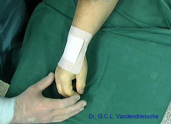 beste pijnstiller na operatie