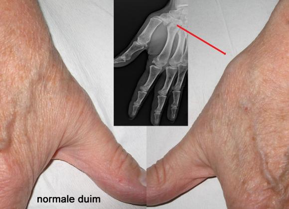 gebroken pols dikke vingers