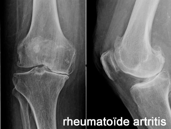 betekenis artritis