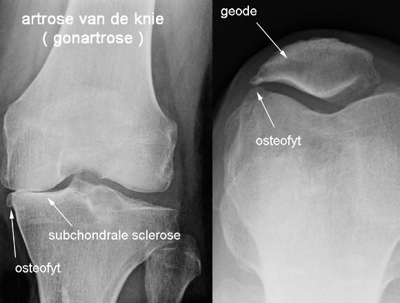 knie artritis