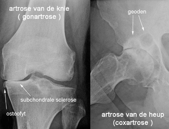 artrose heup oefeningen