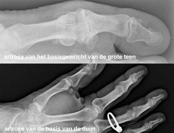 foto artrose vingers en voeten