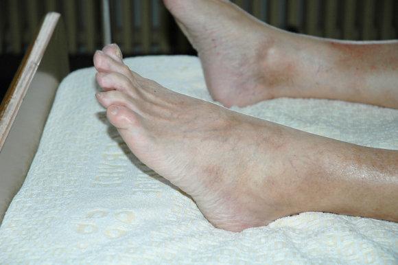spataderen op voeten